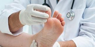 Leczenie ran – jak radzić sobie z problemem wrastających paznokci i modzeli?